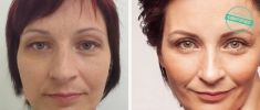 Eyelid surgery (Blepharoplasty) - Photo before - Brandeis Clinic by Lucie Kalinová