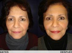 Cirugía de párpados (Blefaroplastia) - Foto Antes de - Dr. Carlos Eduardo Lloreda Ramirez