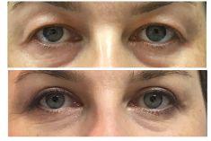 Operace očních víček (Blefaroplastika) - ŽENA, 40 LET, PLASTICKÁ OPERACE HORNÍCH VÍČEK