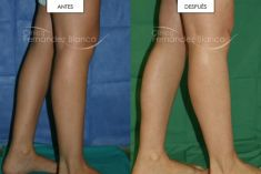 Aumento de glúteos y pantorrillas - Aumento de gemelos con implante de prótesis