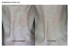 Fotoodmładzanie / odmładzanie skóry - Zdjęcie przed - FORMMED Es Chirurgia plastyczna i medycyna estetyczna