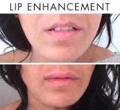Augmentation des lèvres - Cliché avant - Dr Nicolas Zwillinger
