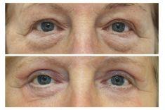 Operace očních víček (Blefaroplastika) - ŽENA, 61 LET, PLASTICKÁ OPERACE HORNÍCH I DOLNÍCH VÍČEK