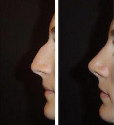 Rinoplastica - Rinoplastica eseguita dal Dott. Matteo Campana
