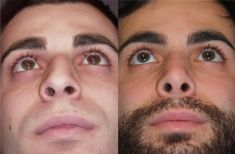 Rinoplastica - Ad oltre un anno dall'intervento, la punta è meglio sostenuta, più triangolarizzata e più armonica. La cicatrice alla columella non è più visibile.