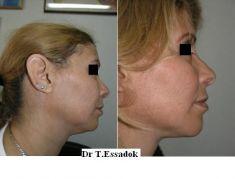 Chirurgie du double-menton - Cliché avant - Dr Tayeb Essadok