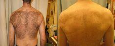 Laserowa epilacja - usuwanie nadmiernego owłosienia - Zdjęcie przed - dr n. med. Małgorzata Kot