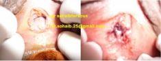 Hymenoplastie - Cliché avant - Dr Ferkous Sohaib