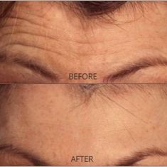 Dermal fillers - Photo before - Dr. Mahmood Kara