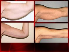 Lifting delle braccia - Foto del prima - Dott. Dario Rochira