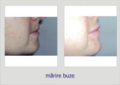 Hyaluronic acid-based wrinkle fillers - Photo before - Dr. Lucian Fodor PhD