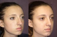Rinoplastica - Nei trequarti, le proporzioni tra dorso e punta sono state corrette, senza tuttavia un dorso scavato. La gradevolezza delle proporzioni del viso è valorizzata, con il dorso che ora confluisce in modo elegante con la punta.