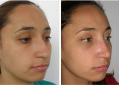 Rhinoplasty (Nose Job) - Photo before - Dr. Carlos González Legarda