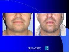 Liposucción de la papada - Foto Antes de - Dr. Luis Pavajeau Muñoz