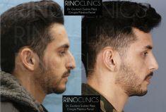 Cirugía de la nariz (Rinoplastia) - Resultado natural tras: rinoplastia ultrasónica. Sin taponamiento, rápida recuperación