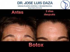 Botox/Dysport - Eliminar arrugas - Foto Antes de
