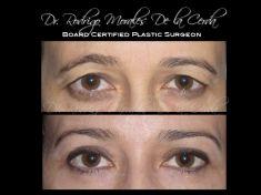 Cirugía de párpados (Blefaroplastia) - Foto Antes de - Dr. Rodrigo Morales De la Cerda