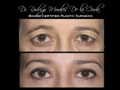 Eyelid surgery (Blepharoplasty) - Photo before - Dr. Rodrigo Morales De la Cerda