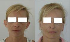 Ear surgery (Otoplasty) - Photo before - Prof. dr hab.  Piotr Wójcicki