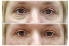 Odstranění kruhů pod očima - fotka před - MUDr. Michaela Hustá