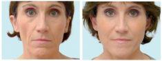 Radiesse (Calcium hydroxylapatit) - fotka před - Brandeis Clinic by Lucie Kalinová
