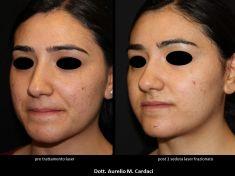 Acne laser, Cicatrici da acne laser - Risultati post 1 mese dal primo trattamento.