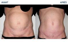 Abdominoplastie - Cliché avant - Dr Cédric Kron