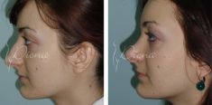 Rhinoplasty (Nose Job) - Photo before - Violeta Skorobać Asanin MD, PhD