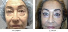 Eyelid surgery (Blepharoplasty) - Photo before - Laserová dermatologická klinika ALTOS