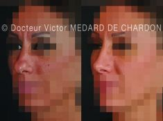 Docteur Victor Medard de Chardon - Rhinoplastie par voie externe avec suture de remodelage de la pointe.
