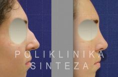 Rhinoplasty (Nose Job) - Photo before - Poliklinika Sinteza