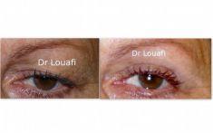 Blépharoplastie - Cliché avant - Dr Adel Louafi