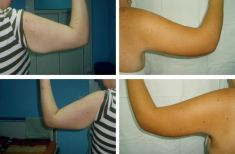 Arm Lift Surgery - Photo before
