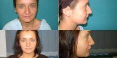 ClinicForYou - Photo before - ClinicForYou