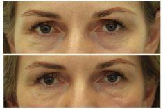 Výplně na bázi kyseliny hyaluronové - Žena, 49 let, korekce kruhů pod očima kyselinou hyaluronovou