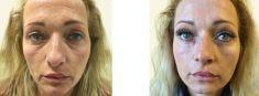 Odstranění vrásek pomocí botulotoxinu - fotka před