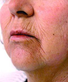Mezoterapia igłowa - odmładzanie twarzy, szyi, dekoltu, dłoni - Zdjęcie przed - Revival Clinic - Klinika Medycyny Estetycznej i Laseroterapii