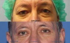 Cirugía de párpados (Blefaroplastia) - Foto Antes de - Cirumed Clinic