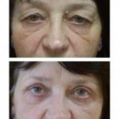 Operace očních víček (Blefaroplastika) - ŽENA, 65 LET, PLASTICKÁ OPERACE HORNÍCH A DOLNÍCH VÍČEK