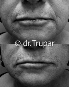 Injekční výplně - fotka před - MUDr. Evžen Trupar Ph.D.