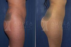 Aumento y Modelado de Glúteos - Foto Antes de - Dra. Ana Martinez Padilla