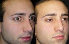 Rinoplastica - Nel postoperatorio, si sono ripristinate delle proporzioni corrette con l'impiego di innesti (cartilagine e fascia temporale)