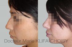 Dr Marie Klifa-Choisy - http://www.chirurgie-esthetique-nice.fr/chirurgie-esthetique/chirurgie-du-visage/rhinoplastie/http://www.chirurgie-esthetique-nice.fr/chirurgie-esthetique/chirurgie-du-visage/rhinoplastie/
