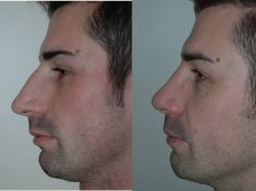 Rinoplastica - Correzione dei difetti della gobba e della punta nasale.