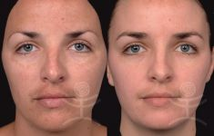 Chemical peeling - Photo before - Mediestetik, skupina klinik