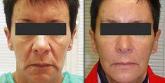 Lifting Facial Silhouette Soft - Cliché avant - Dr Jean-Luc COHEN