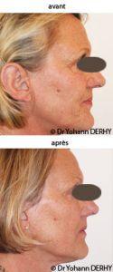 Dr Yohann Derhy - Cliché avant - Dr Yohann Derhy