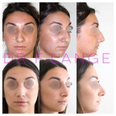 Rhinoplastie - rhinoplastie + lipomodelage des lèvres. #rhinoplastie #esthetique. resultat précoce #avantapres à 1 mois. #chirurgieesthetique #montpellier #nez #profil #instabeauty #rhinoplasty #nosejob #nose #chirurgie #beforeandafter #rhinoplastyspecialist #specialisterhinoplastie #lips #levres #rhinoplastiemontpellier