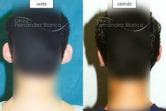 Otoplastia - Cirugia de orejas
