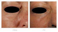 Fotorejuvenation  - Photo before - Klinika YES VISAGE - klinika estetické medicíny a plastické chirurgie